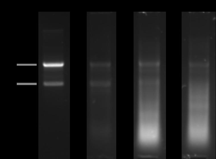 Agarose electrophoresis gel showing good vs degraded RNA